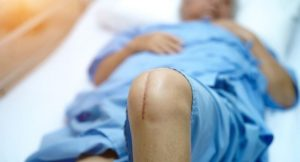 What To Do if You Had an Unnecessary Surgery